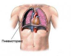 ondt i brystet ved hoste