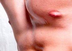 eksem brystvorte